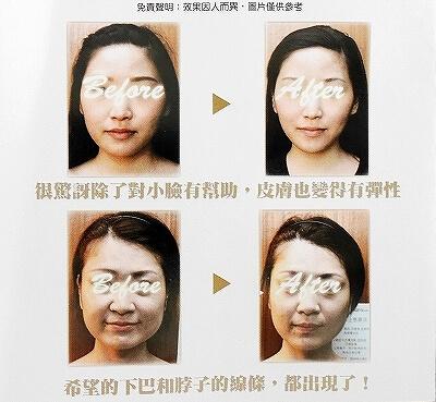 台湾 台北 美顔工場 Facia Ginza 小顔矯正 小顔調整 エステ ビフォーアフター